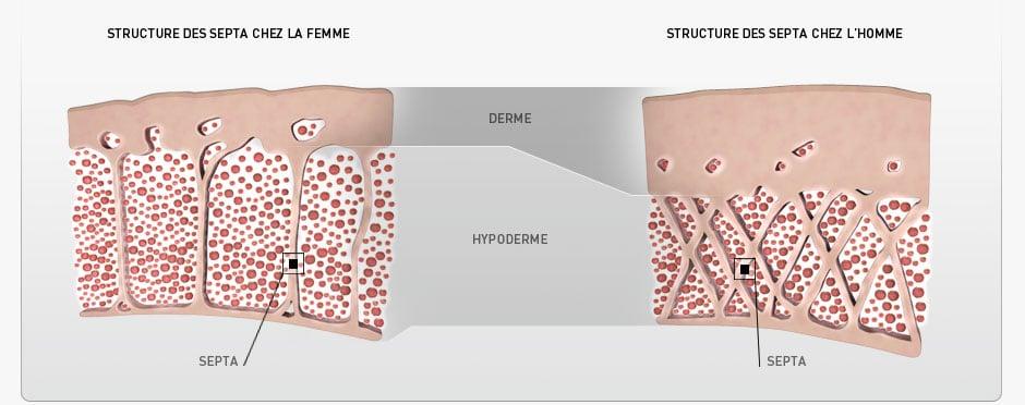 image cellulite